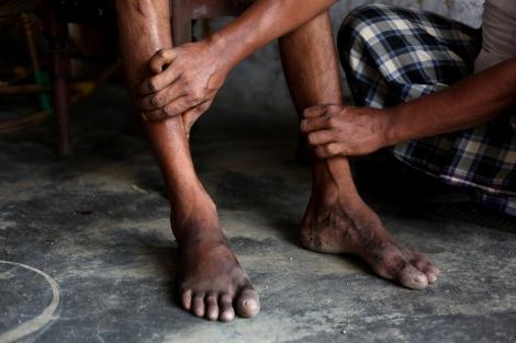 난민보트와 오랜 정글 생활 동안 접은 다리 생활의 후유증으로 잘 걷지 못하는 자니 알람 (25, Jani Alam) 전통 치료사에게서 마사지를 받고 있다. (Photo © Lee Yu Kyung)