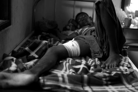 8월 9일 시뜨웨 외곽 로힝야/무슬림 피난민(IDPs)캠프에서 경찰의 발포로 부상을 당한 이가 캠프안에 있는 다파잉 클리닉에 누워있다. 캠프와 인근 무슬림 마을 치안을 담당하는 경찰 일부가 전 국경경찰 나사까 (Nasaka) 출신인 것으로 알려져 있다. 로힝야 무슬림들은 버마 군인보다 나사까를, 라까잉족 중심의 경찰을 더 두려워한다. (Photo © Lee Yu Kyung 2013)