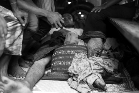 A Rohingya IDP lies down inside a truck at yard of Dapaing clinic in IDPs camp area. He's got injured as security forces shot at crowd on August 9, resulting in a few deaths and a dozen injured. Despite his serious injury, he was left with no emergency treatment or ambulance brought-in at photographing time on August 10. (Photo © Lee Yu Kyung 2013)