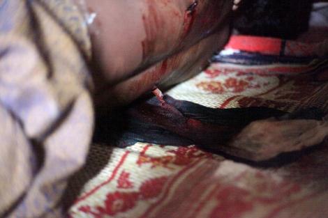 나시르 압둘라(25)는 8월 9일 오후 2차 폭력사태 발생한 보두바 캠프 인근 시장을 다녀오며 길을 건너다 등에 총을 맞았다. 눈을 감지 못한 채 즉사했다. (Photo © Lee Yu Kyung)