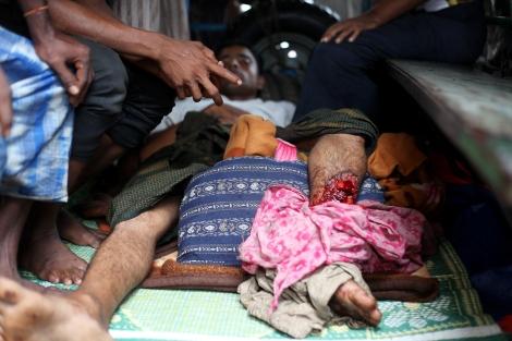 8월 9일 시뜨웨 외곽에 위치한 로힝자/무슬림 난민 캠프에서 경찰의 발포로 최소 2-3명이 사망하고 10여명이 부상을 입었다. 병원 뜰에 주차된 한 트럭에는 다리에 총상을 입은 환자가 속수무책으로 누워 있었다. (Photo © Lee Yu Kyung)