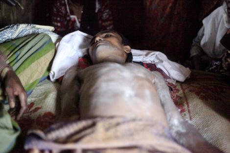 나시르 압둘라(25)는 8월 9일 오후 2차 폭력사태가 발생한 보두바 캠프 인근 시장을 다녀오며 길을 건너다 등에 총을 맞았다. 그는 눈을 감지 못한 채 사망했다. (Photo © Lee Yu Kyung 2013)