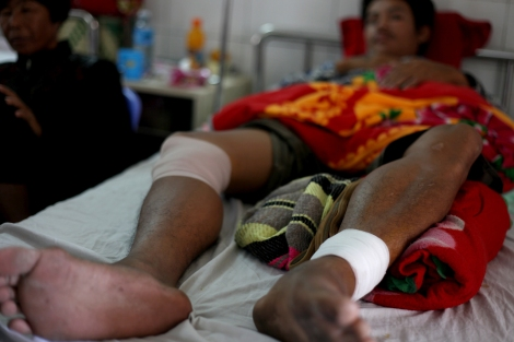 Srey Thorn (24) was driving Tuk Tuk on January 3rd when he got shot with 3 bullets near Canadia Industrial Park on Veng Sreng road. On that day tens of thousands garment workers were demand wage raise from 80 USD to 160 USD per month. According to workers who participated in the strike, most of workers from the Industrial Park had participated as they were outraged by the violent crackdown on previous day. (Photo © Lee Yu Kyung)
