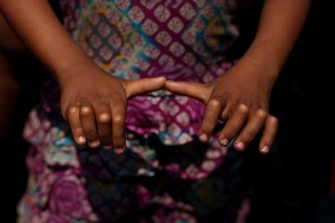 방글라데시 미등록 로힝야 캠프에 사는 한 어린이가 굽은 손가락을 보이고 있다. 흔한 설사병에서부터 이 아이처럼 원인을 잘 알 수 없는 질병과 증세까지 구호활동이 제한된 캠프 난민들의 건강 상태는 열악했다. (Photo © Lee Yu Kyung)