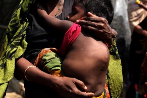같은 캠프에 사는 4살 소년 소메야딴은 꼽추로 태어나 사고까지 만난 뒤 늘 숨을 가쁘게 몰아쉰다. NGO가 운영하는 캠프 내 병원에서 기본적인 의료 지원만 가능할 뿐 질병 '치료' 같은 건 꿈도 못 꾼다. (Photo © Lee Yu Kyung)